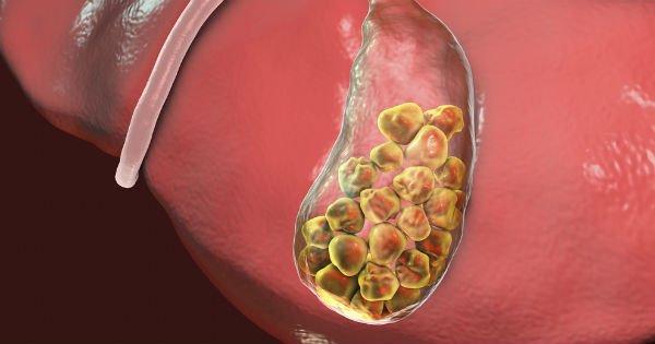 ¿Qué son los cálculos biliares?
